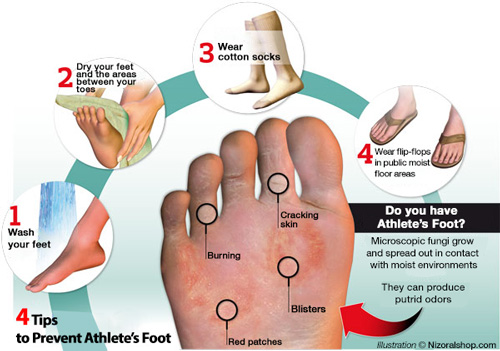 Illustration of how you get athlete's foot and tinea pedis and tips to prevent athlete's foot
