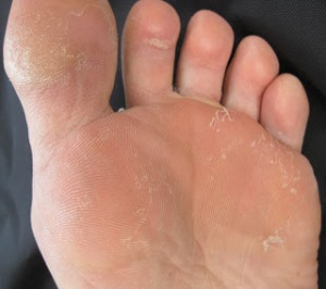 San Francisco Podiatrist picture of athlete's foot in a Bay Area triathlete.
